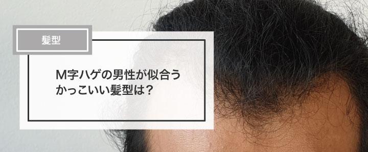 M字ハゲの男性が似合うかっこいい髪型は?