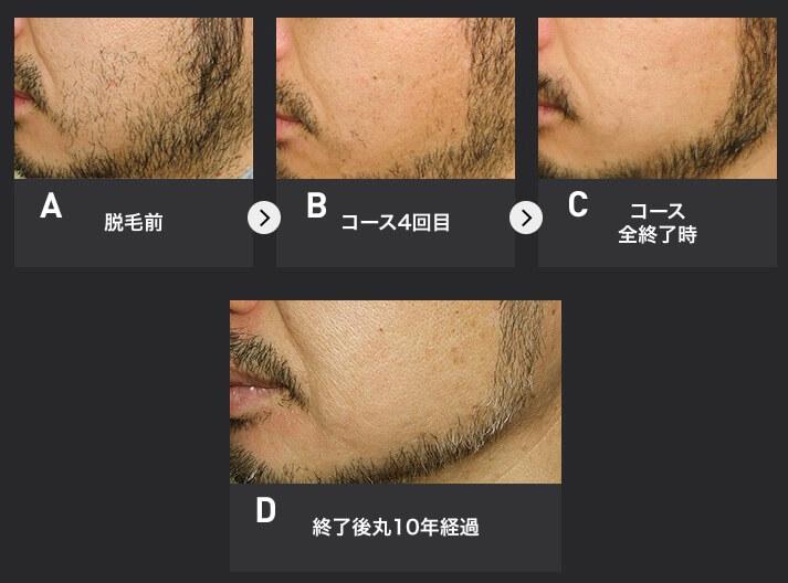メンズTBCでスーパー脱毛(ニードル脱毛)をした男性の顔