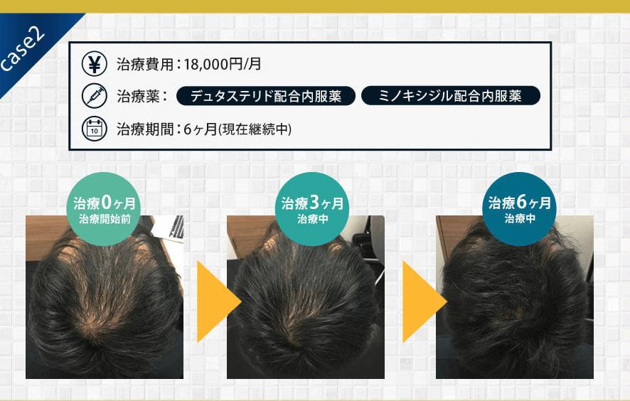 AGAヘアクリニックでAGA治療を受けた男性の頭頂部・つむじ