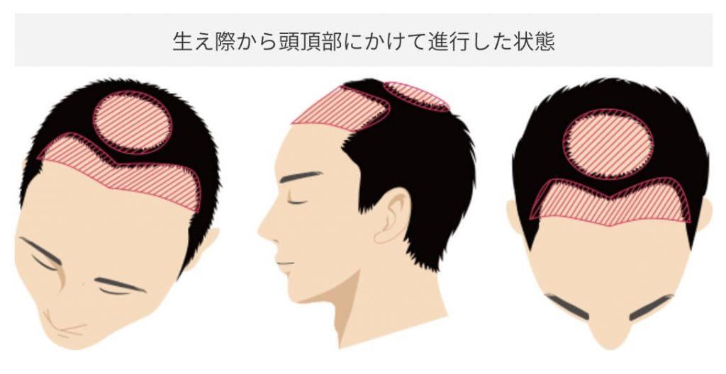 生え際から頭頂部にかけて進行した状態