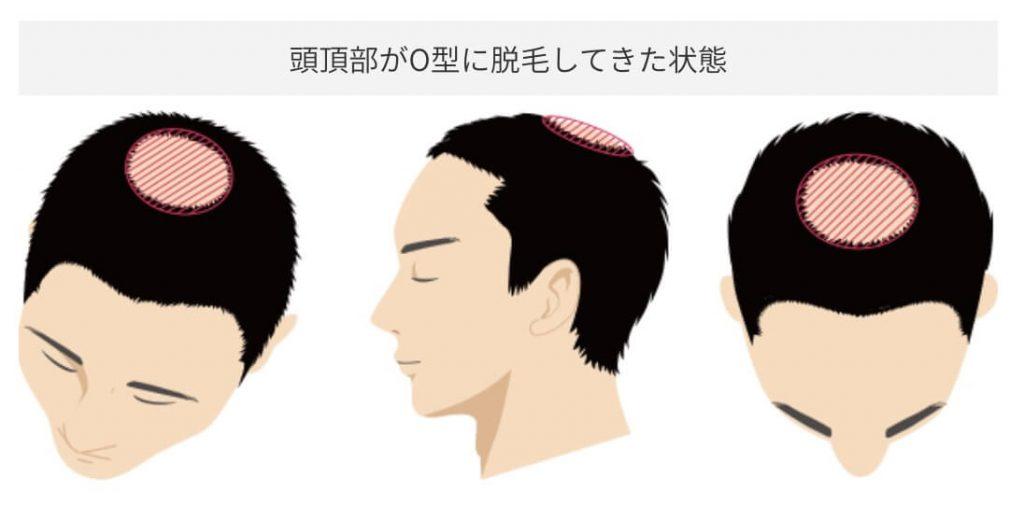 頭頂部がO型に脱毛してきた状態
