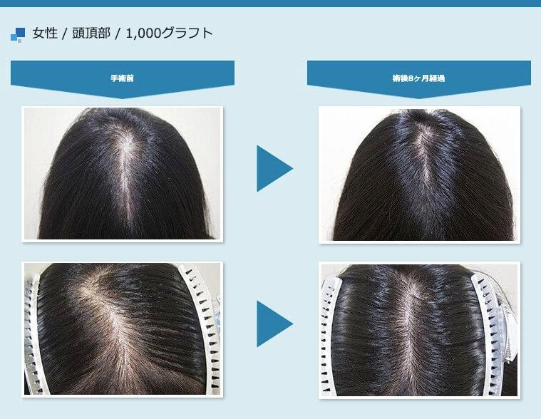 アスク井上クリニック 女性の頭頂部・つむじへの植毛症例