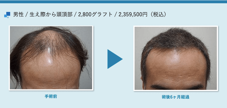 男性 / 生え際から頭頂部 / 2,800グラフト / 2,359,500円(税込)