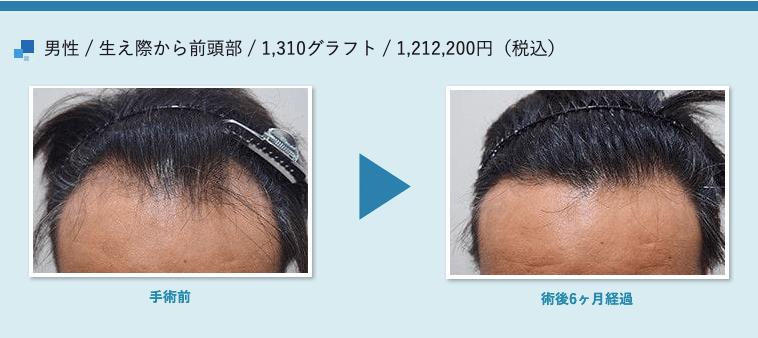 男性 / 生え際から前頭部 / 1,310グラフト / 1,212,200円(税込)