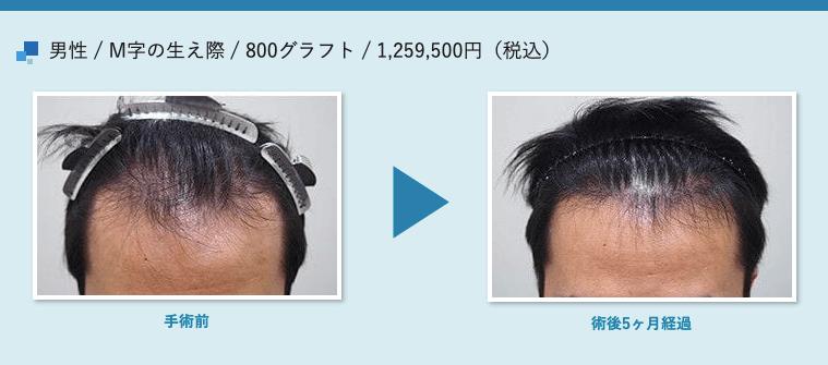 男性 / M字の生え際 / 800グラフト / 1,259,500円(税込)