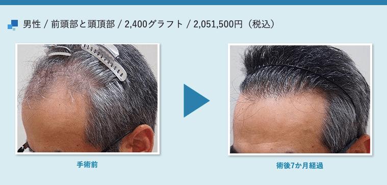 男性 / 前頭部と頭頂部 / 2,400グラフト / 2,051,500円(税込)